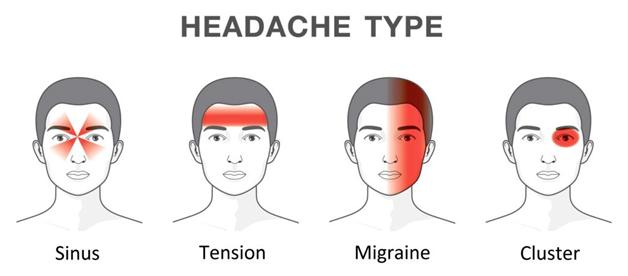 Tension-Headaches 3