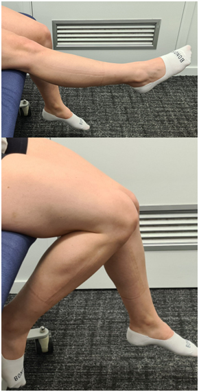 ACL Post-OP Blog